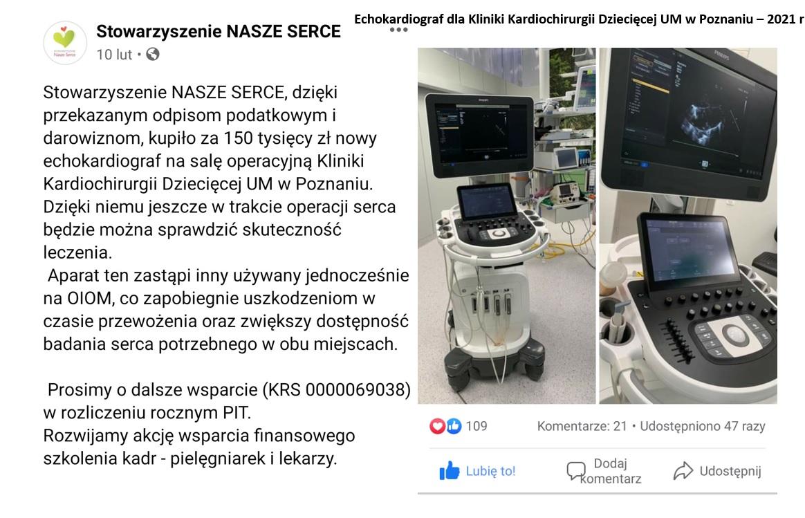 SNS-echokardiograf